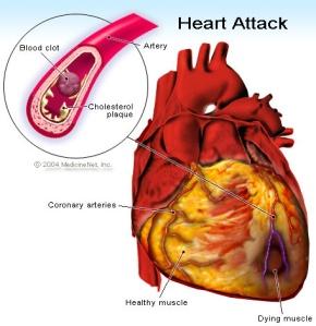 heart_attack